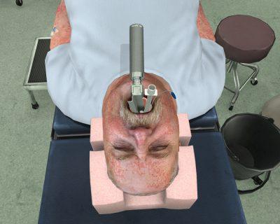 Sedation-and-Airway-Reactio